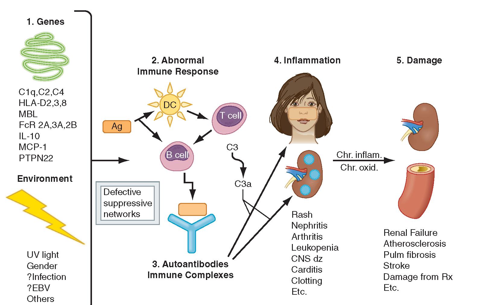 New Autoimmune Crisis Drug for Lupus reaches Human Trials