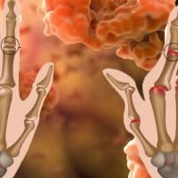 Sanofi_regeneron_rheumatoid_arthritis_salurimab