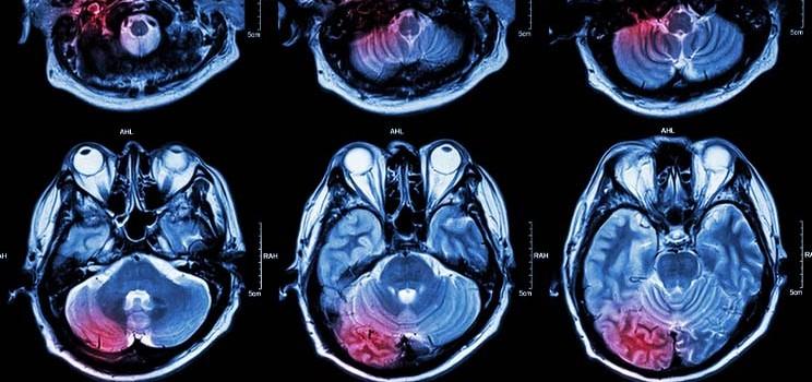 immunocore_eye_uveal_cancer_immtac
