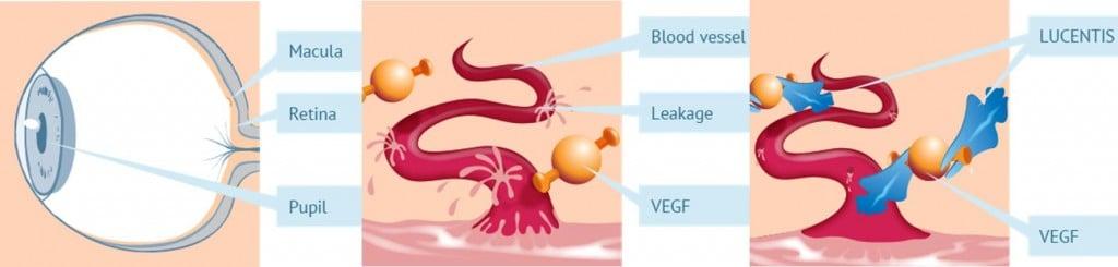 macular degeneration vgef xbrane helvetic primm pharma lucentis xlucane iran biosimilar