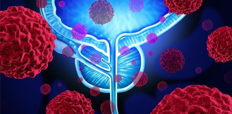 prostate_cancer_trod_encage_leuven_ucl_vesalius