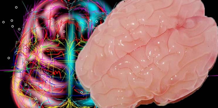 3d_bioprinting_brain_neurology_harvard_inserm_cnrs_finland