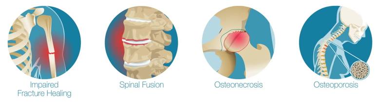 osteoporosis_spinal_fracture_bones_disease_therapeutics_kasios_preob_allob