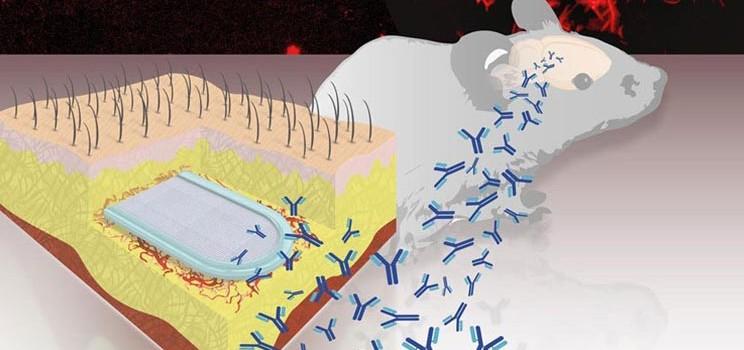 ecole_lausanne_amyloid_beta_alzheimers_neurodegenerative_tau_research_antibody