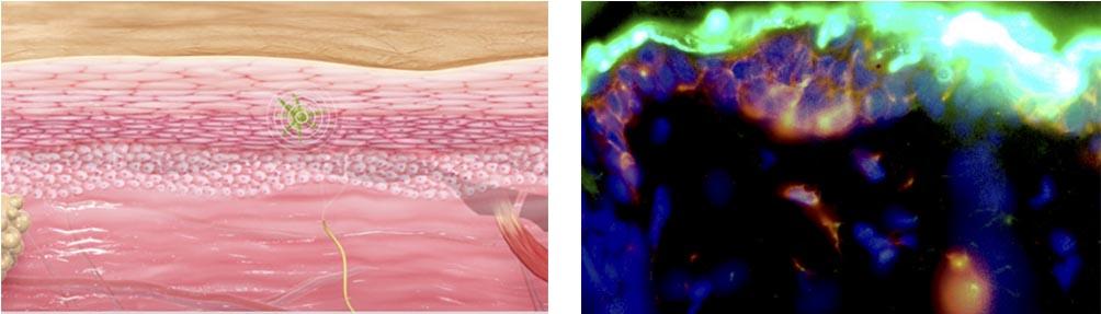 langerhans_cells_dbv_technologies_viaskin_peanut_immunotherapy_allergy