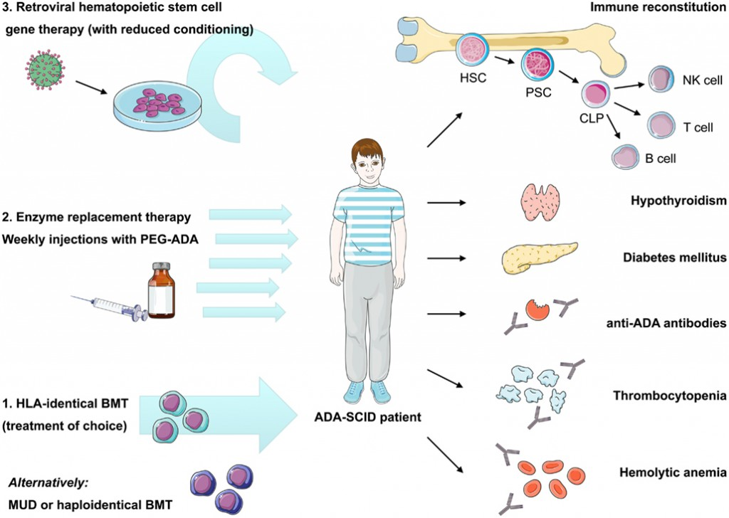 ada-scid_immunology_stremvelis_gsk_offerele_telethon_ema_gene-therapy