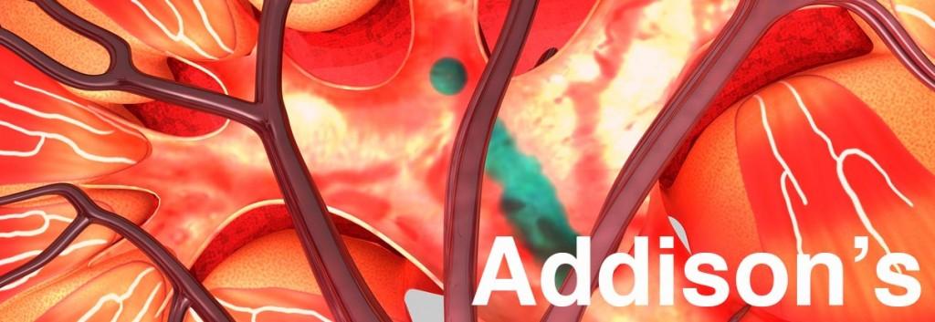 addisons_disease_autoimmune_endocrinology_lupus_biotech_medicine