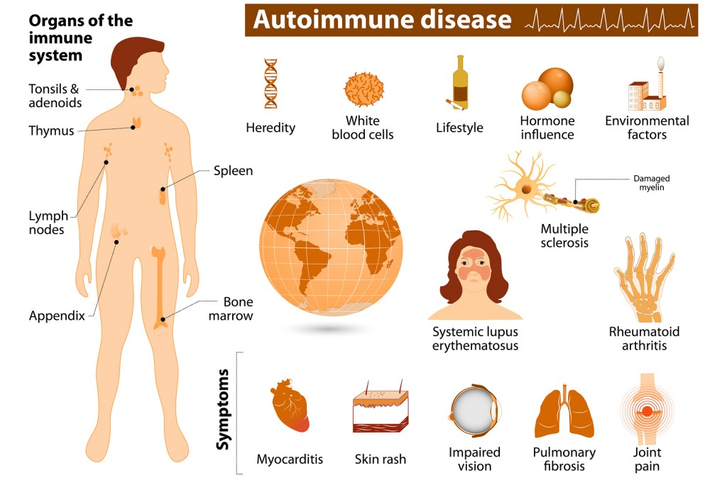 Here's 7 Autoimmune diseases you should know