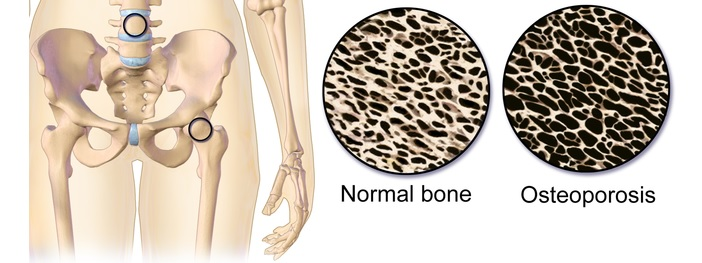 osteoporosis_severe_bone_cell_therapy