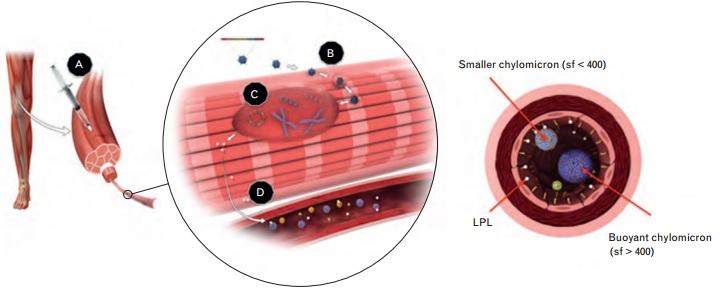 uniqure_glybera_gene_therapy_lipoprotein