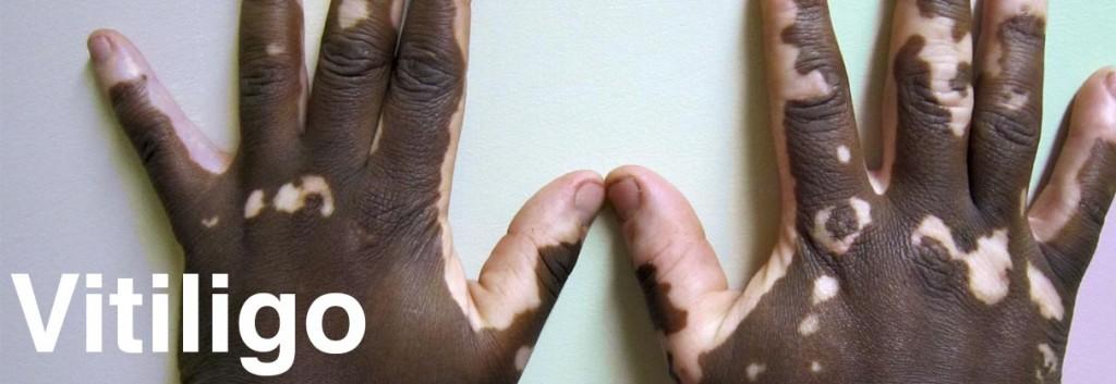 vitiligo_disease_autoimmune_endocrinology_lupus_biotech_medicine