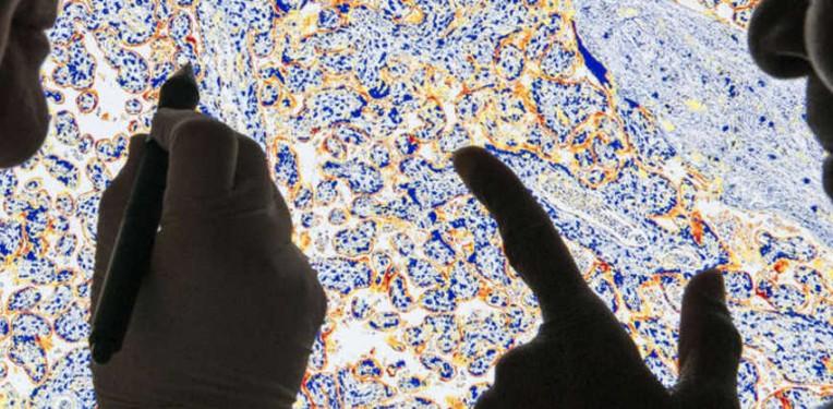 astrazeneca_asthma_copd_epigenetic_targets