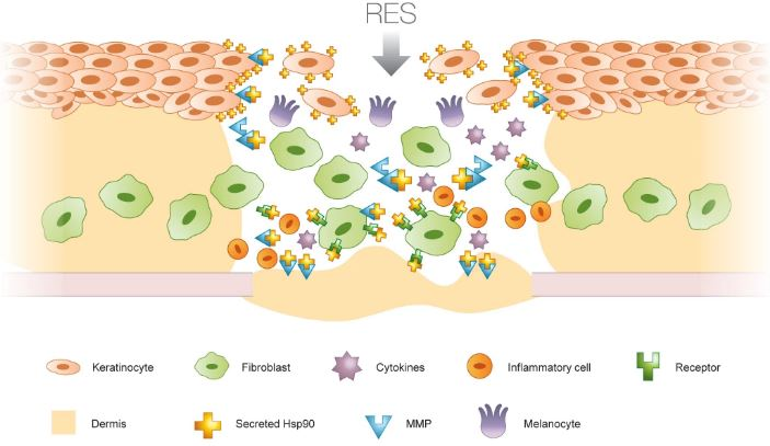 avita_regenercell_chronic_wound_diabetes