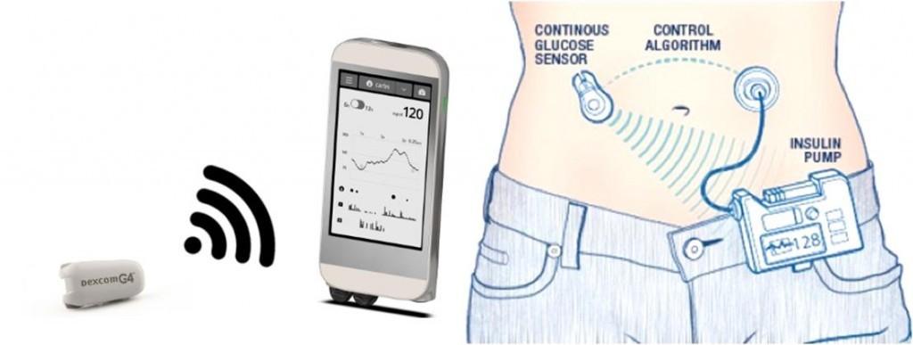 bionic_pancreas_ilet_boston_cyborg_biotech_medtech_diabetes_review