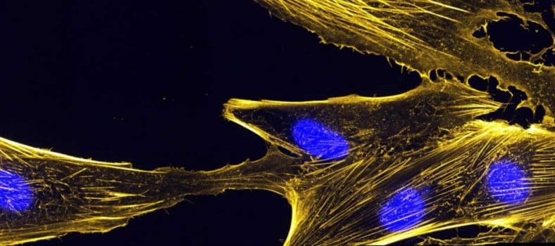 crispr_therapeutics_muscle_stem_cells_anagenesis