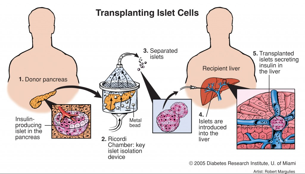 islet_cell_transplant_type1_diabetes_research