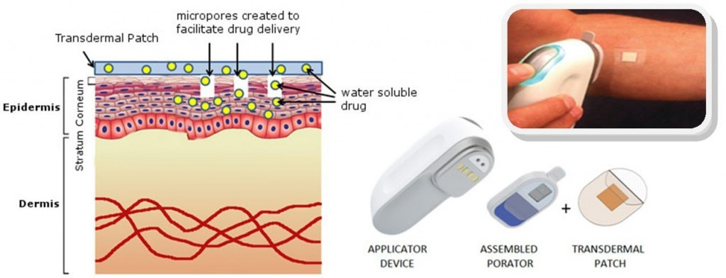 nitto_transdermal_drug_delivery_skin_patches_diabetes_medtech-diabetes_review