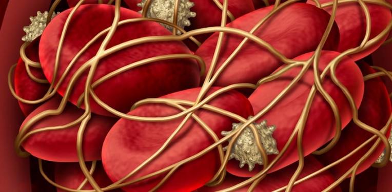 boehringer ingelheim stroke thrombus ischemia