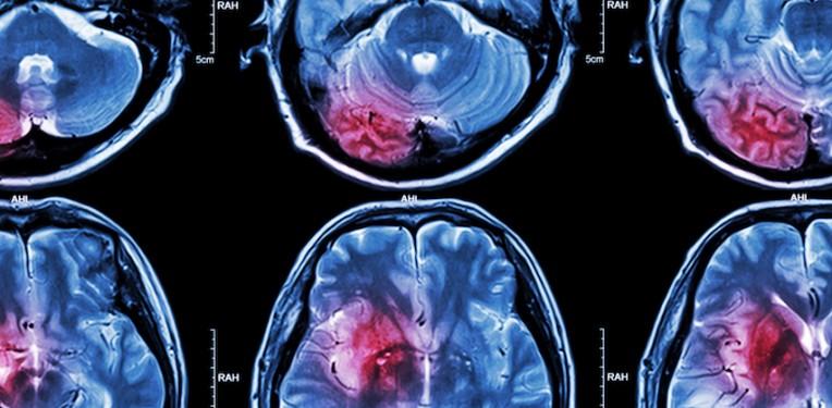 brain-tumor-puwadol-jaturawutthichai-fi