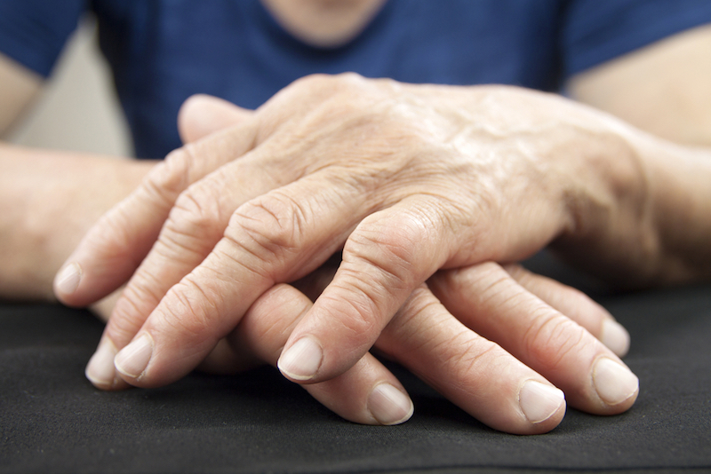 Figure 1. Hands are a common site for arthritis.