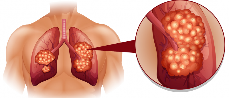 Achilles Therapeutics targets Lung Cancer