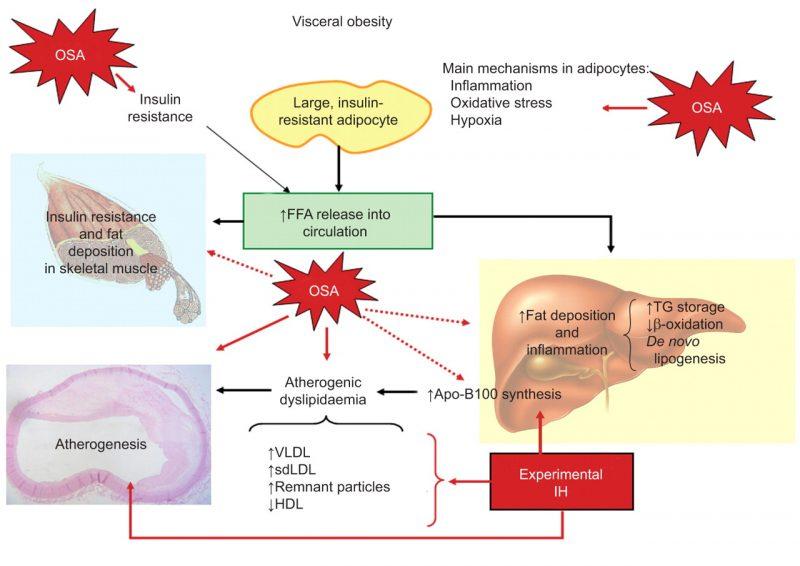 visceral fat phisiology metabolism liver
