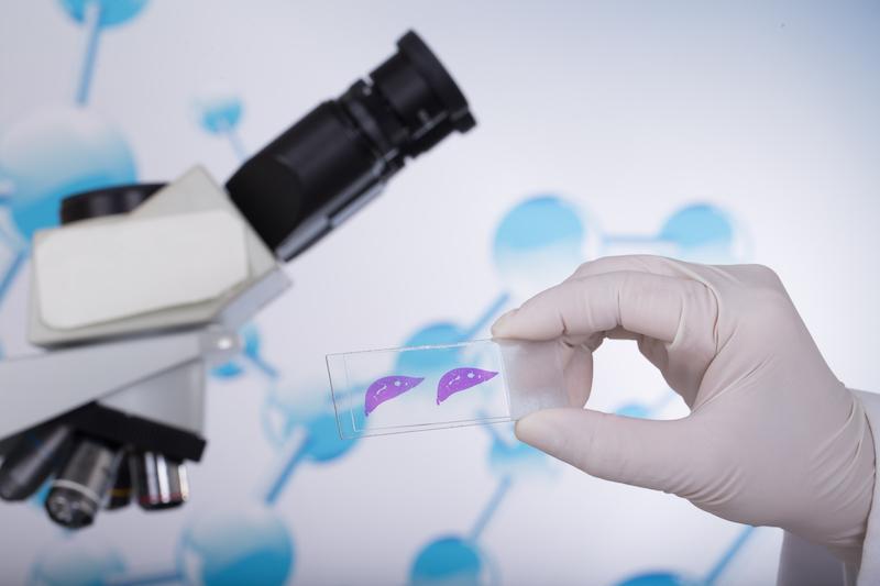 liver-biopsy-tonhom1009-small