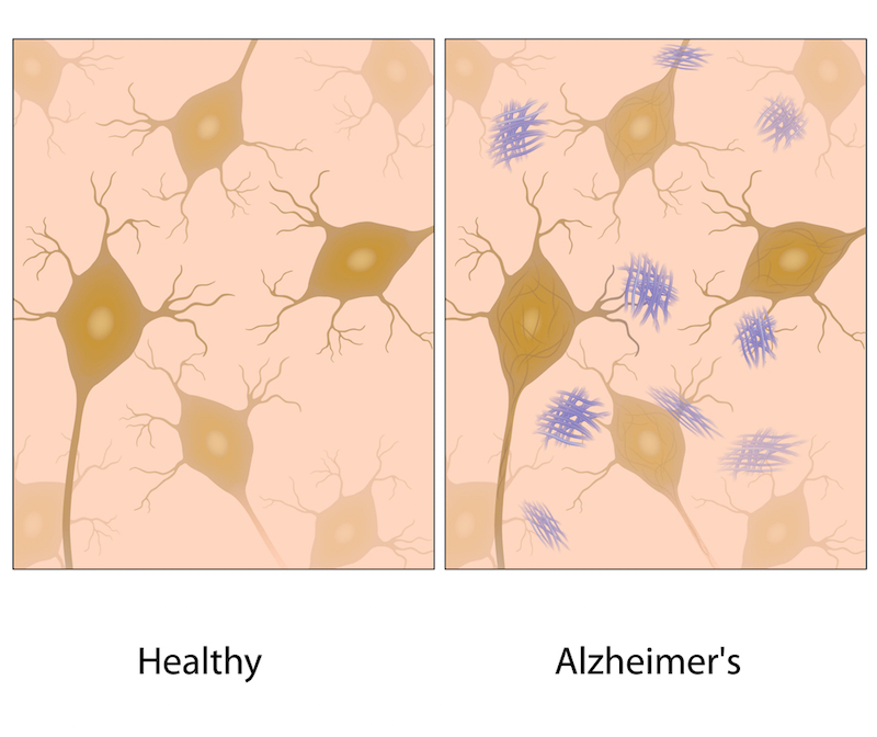 A hallmark of Alzheimer's is the development of amyloid beta plaques. In contrast with current approaches to clear these plaques, those in the anti-aging space strive to stop them from forming at all.