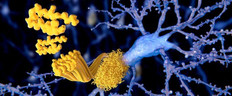 amyloid beta plaques Alzheimer's