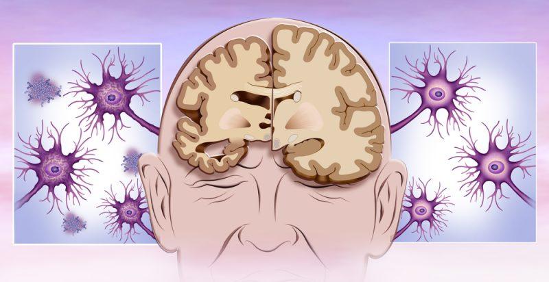 Evotec Celgene Alzheimers