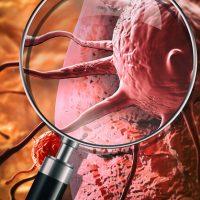 PsiOxus BMS oncolytic virus