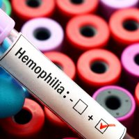 Hemophilia review