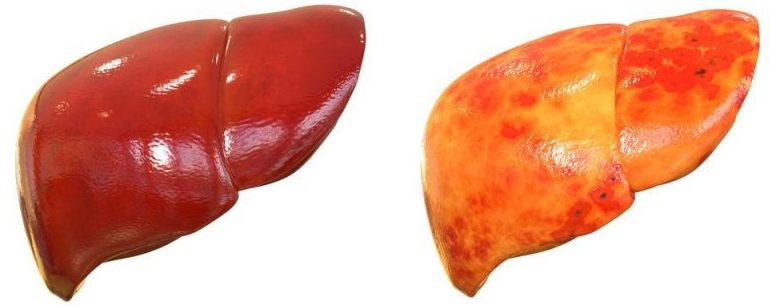 NASH consists in the accumulation of fat, inflammation and degeneration of the liver. It highly increases the risk of cirrhosis and cancer.