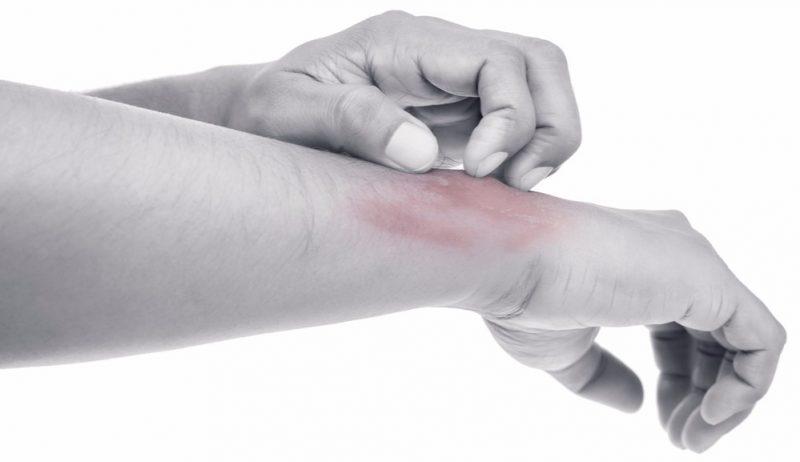 Sanofi atopic dermatitis early access
