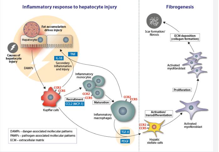 NASH_Inflammatory-Mechanisms