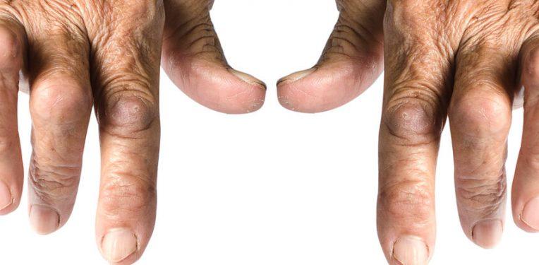 sanofi-regeneron-rheumatoid-arthritis-sarilumab
