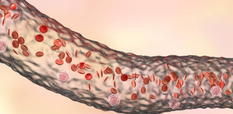 Cinfa Biotech biosimilar amgen