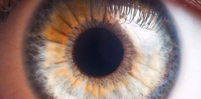 Isarna-glaucoma-ISTH0036-Phase-I