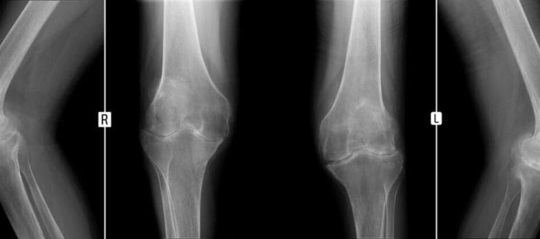 Merck Ablynx nanobody osteoarthritis