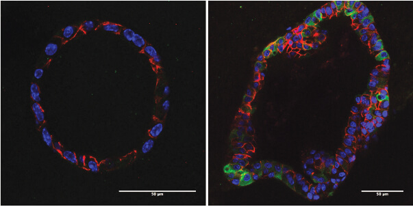 In organoid cultures, mouse residual breast cancer cells (right) have elevated lipid metabolism (green)