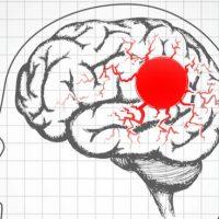 hectares-milestone-migraine-gpcrs