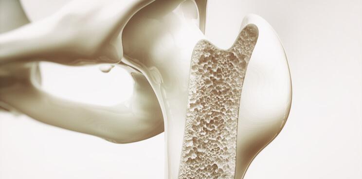 Bonesupport IPO biomaterial bone repair