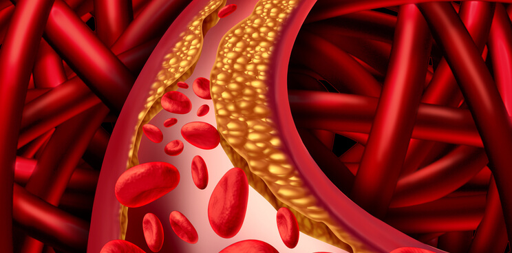 Novartis-Cardiovascular-Canakinumab-Phase-III