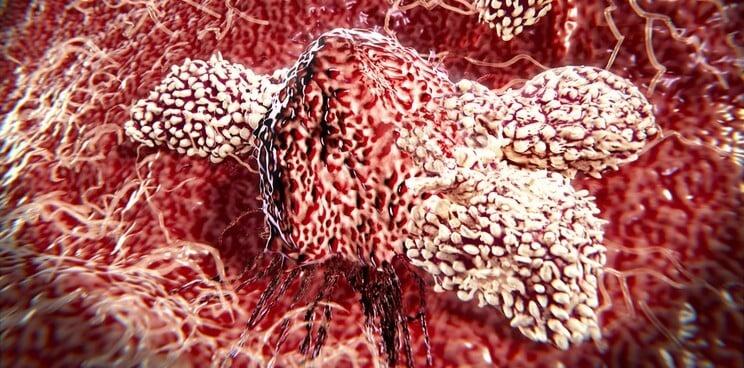 Celyad CAR-T trial metastatic colorectal cancer