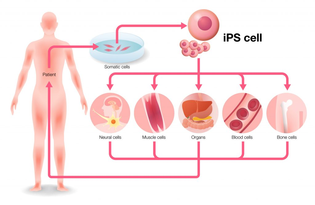 induced-pluripotent-stem-cells-evotec