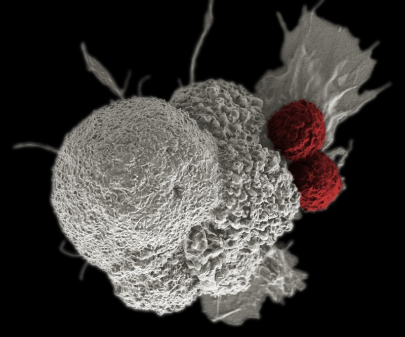 Uk Biotech Gets Huge Grant To Launch Off The Shelf Car T Cancer