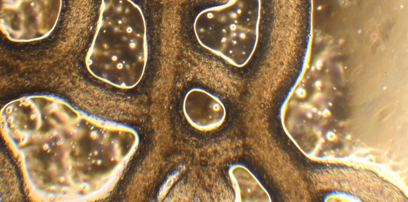 Physarum polycephalum under the microscope