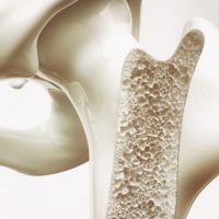 Bonesupport IPO biomaterial bone repair