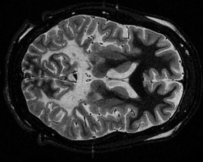 MRI scan of the brain of a patient with X-ALD