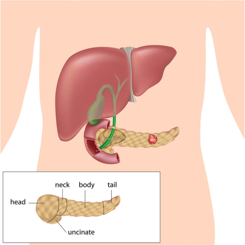 pancreas cancer Pancreatic cancer prognosis each year approaching 50,000 people in the united states (and double this number in europe) are now diagnosed with pancreatic cancer (adenocarcinoma.